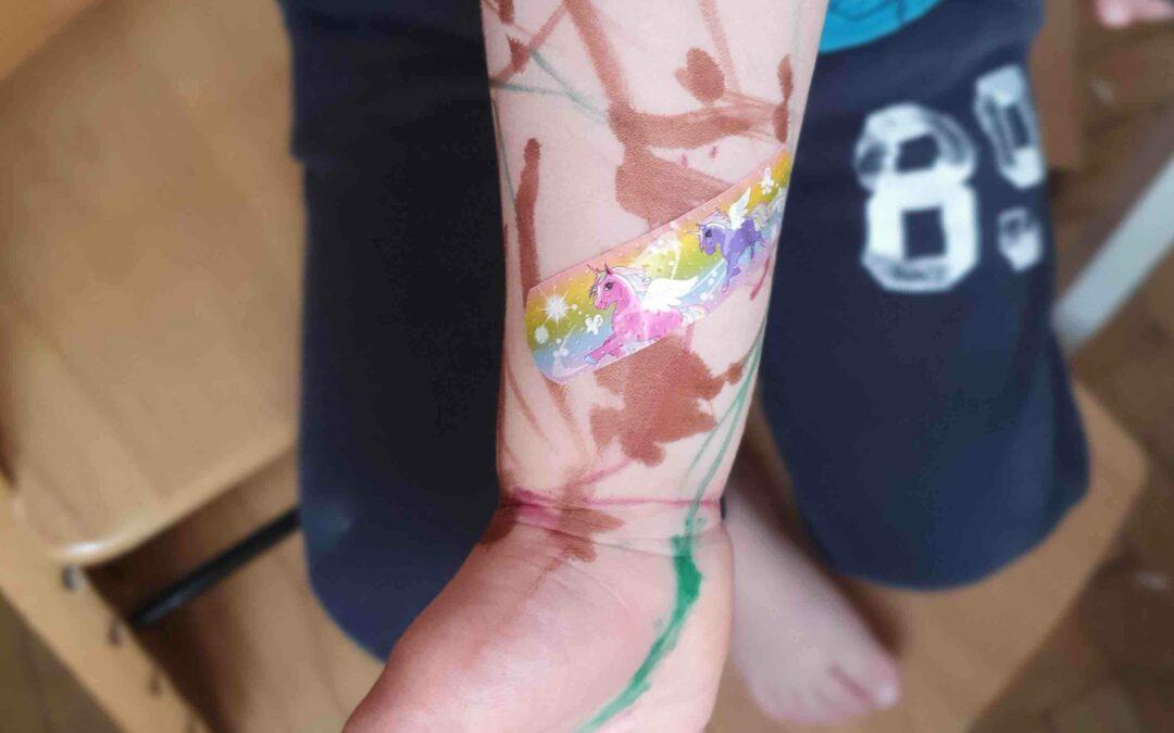 Wenn sich ein Tattoo entzündet…